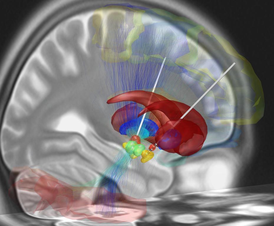 知る人ぞ知る治療法 「脳深部刺激療法(DBS)」